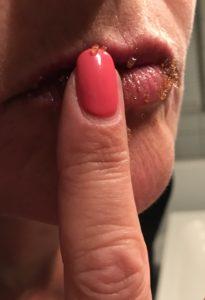 Læbe scrubs med love2live