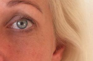 Efter billede øjne, botox på flaske fra MOL&B