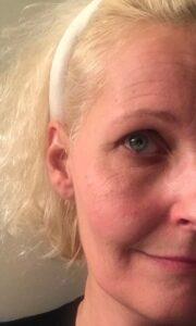 BIOMED - Love2Live - Kristina Sindberg - hudpleje - anmeldelse - antiage - fynske influencers - ansigtsløftning uden kniv