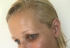 Smukke rynker - Forget Your Age fra BIOMED - Love2Live - Kristina Sindberg - +40 hudpleje